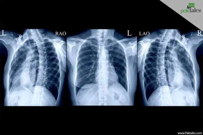 abdominal x-ray, xray, sharp pain life threatening, rib cage pain