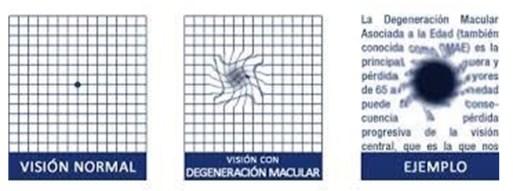 degeneracion macular asociada a la edad (dmae)