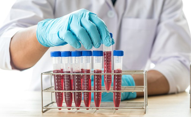 Researcher examines a blood sample for potential pancreatic cancer biomarkers