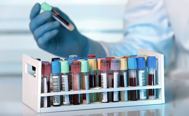 Early Detection Blood Tests