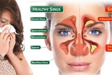 Gejala Sinusitis