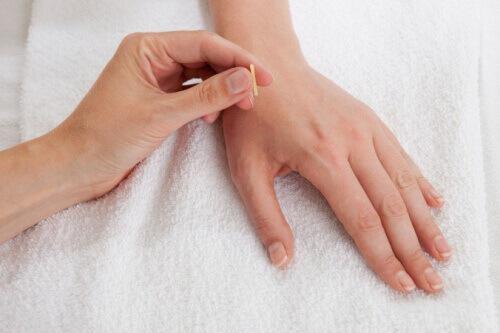 Akupunktur och zonterapi punkter