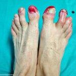 Los pies de Lidón con quemaduras por congelación de segundo grado