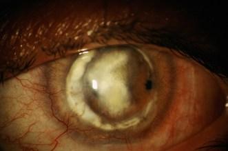 Trapianto di cornea fallito per la mancanza di cellule staminali dell'epitelio corneale (deficit limbare) in un paziente ustionato.