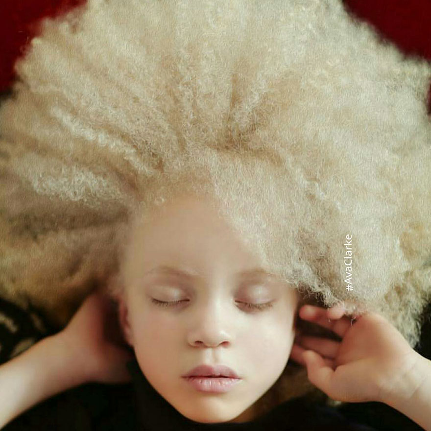 Albino big tits picture 66