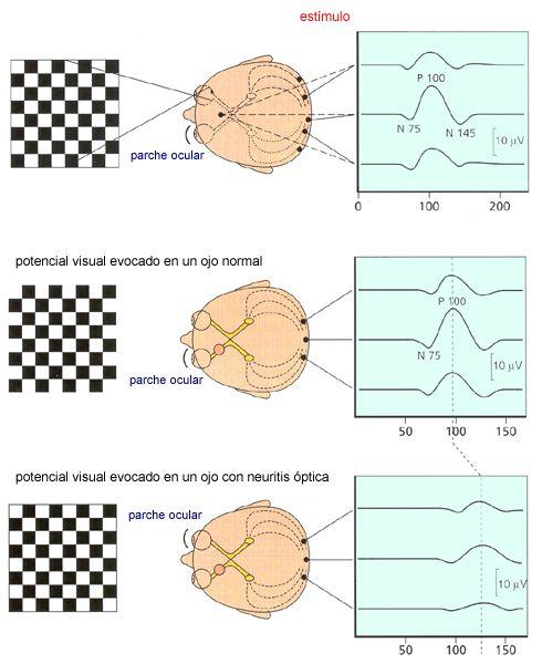 Resultado de imagen de Los potenciales evocados visuales