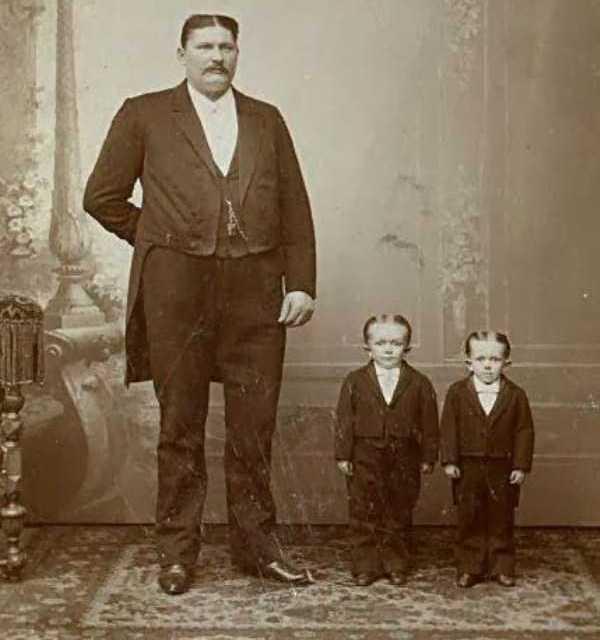 Sfortunatamente i bambini ereditarono i capelli dal padre e l'altezza dalla madre