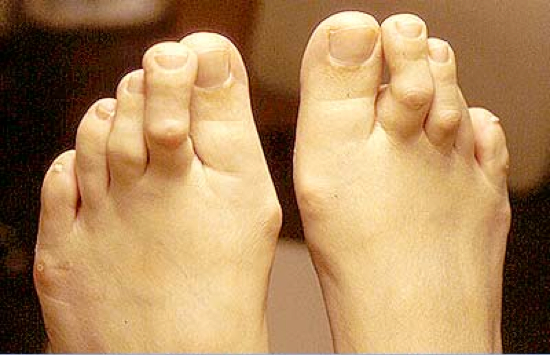 flexor stabilization contracted toes