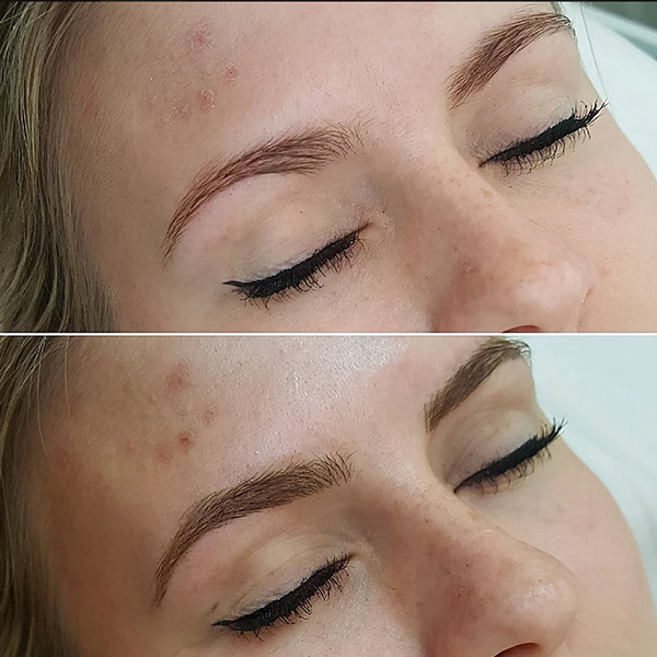 Microblading_Gallery_2