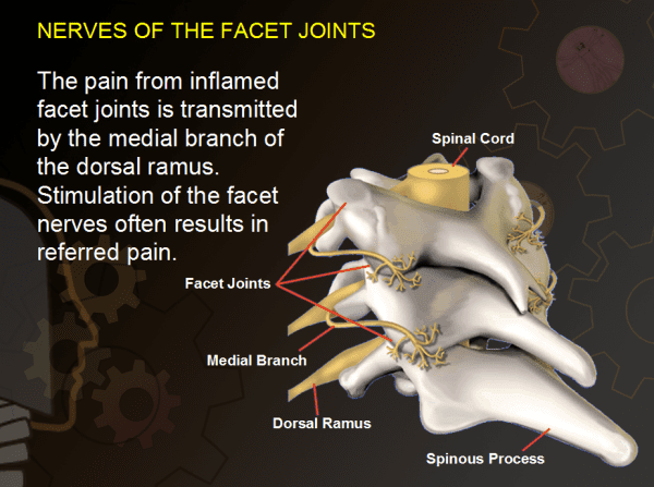 Neck Pain Resulting From Injured Joints Of The Neck From A Car Accident