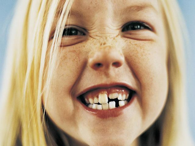 cade primo dentino