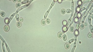 foto_candida_microscopio