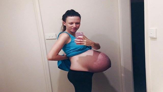 foto_donna_incinta