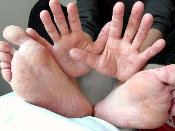 morbillo sintomi