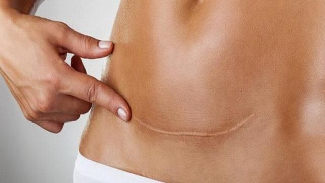 Perché la cicatrice del cesareo fa male quando cambia il tempo
