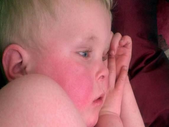 bambino quinta malattia