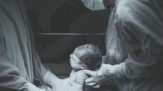 Foto parto cesareo nascita