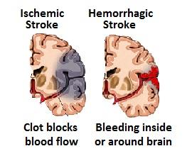 ischemic and hemorraghic stroke brain map