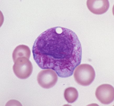 Faggot cell in acute promyelocytic leukemia