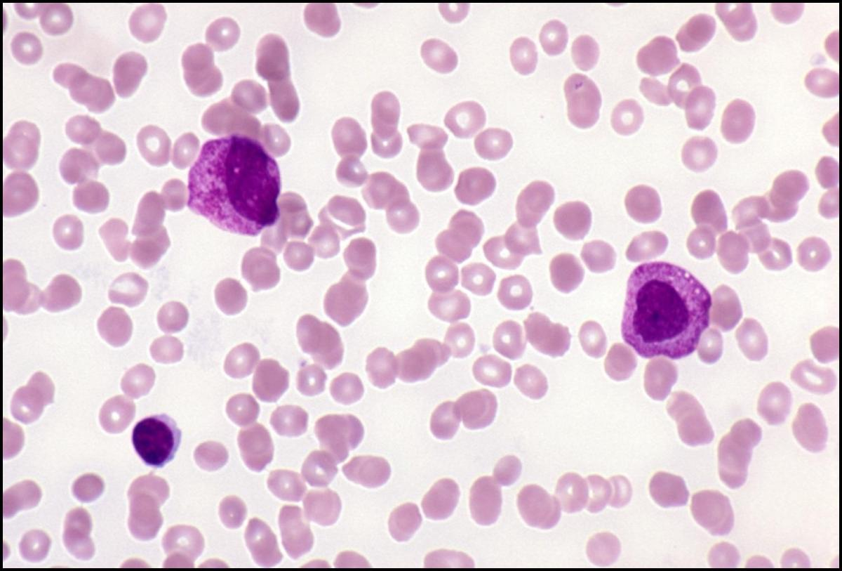 Acute leukemia quiz