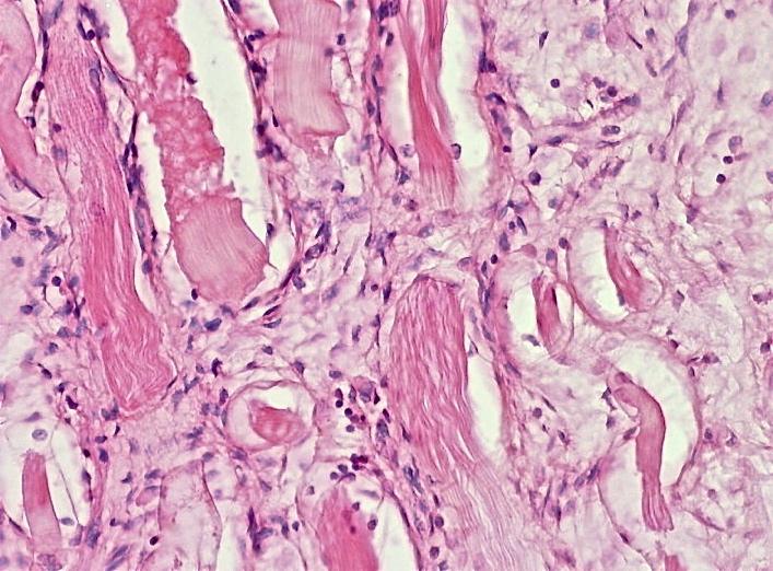 Desmoid tumor: benign but nasty | Pathology Student