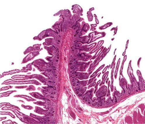 Small intestine big