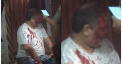 Homem é agredido com vários golpes de barra de ferro por homens encapuzados em sua casa em Santa Luzia