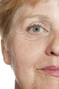 What your wrinkles say about your bone health