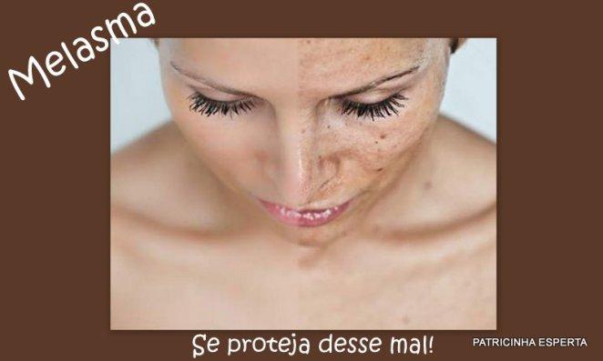 2011 08 23 - Melasma : O Que é e Como Tratar