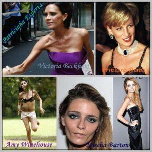 famosas  300x300 - Transtornos Alimentares III - Bulimia e Anorexia