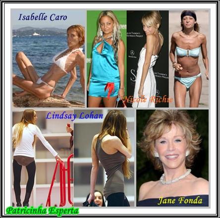 famosas 2 - Transtornos Alimentares III - Bulimia e Anorexia