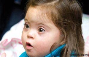 sindrome down1 300x192 - Por uma sociedade inclusiva