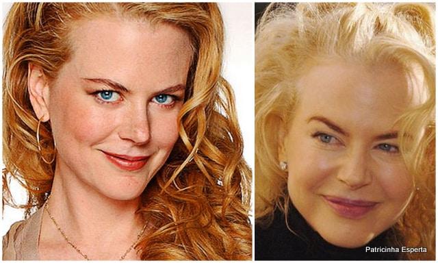 Patricinha Esperta232 - Elas Exageraram no Botox