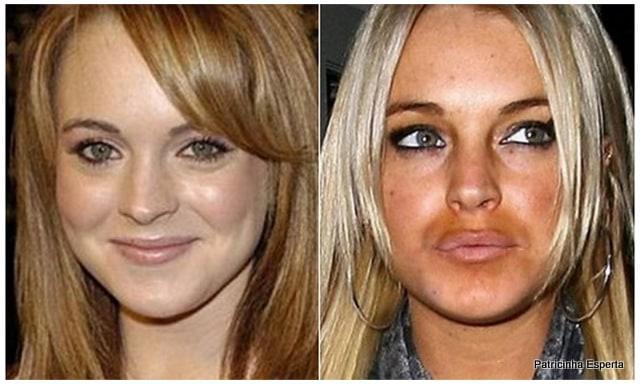 Patricinha Esperta241 - Elas Exageraram no Botox