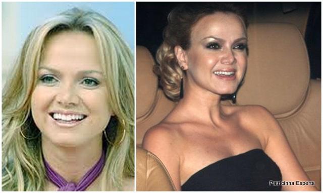 Patricinha Esperta252 - Elas Exageraram no Botox