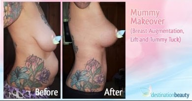 Tummy Tuck Thailand Earlier than & After