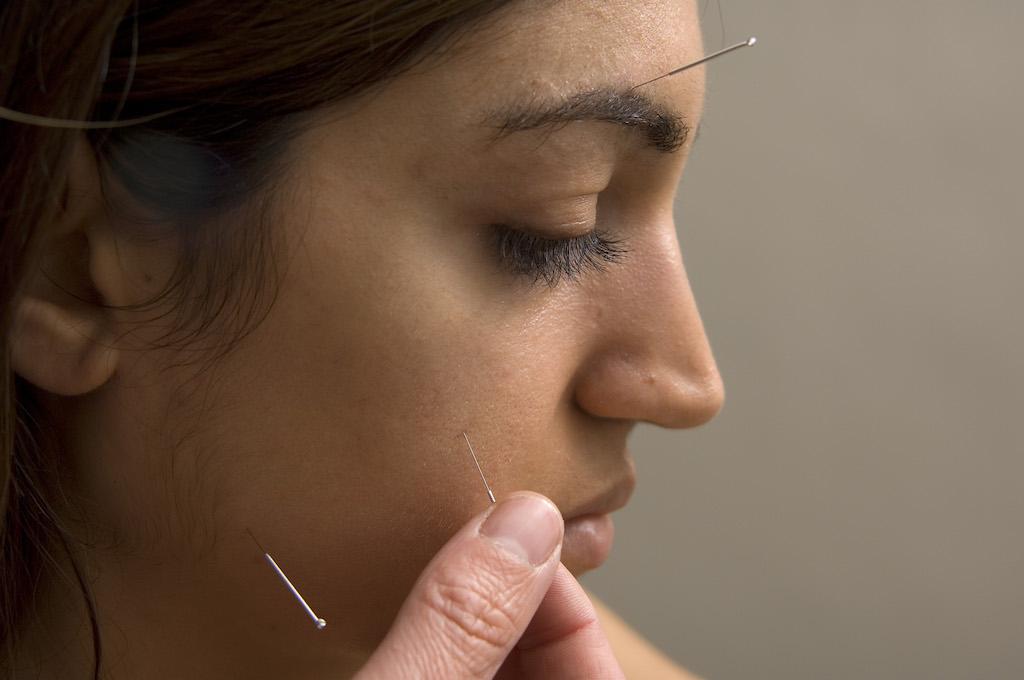 Paul Blacker acupuncture bells palsy copy
