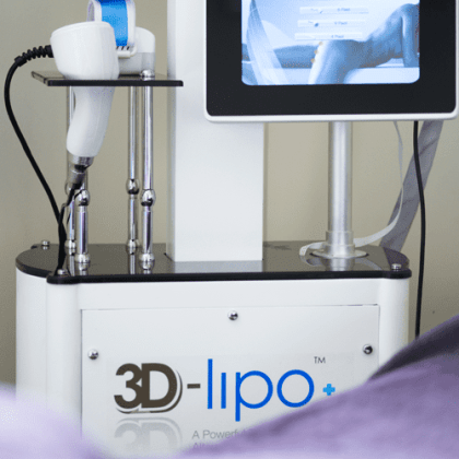 3D lipo is here at the Banwell Clinic!