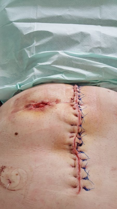 Stoma Reversal Surgery After Bowel Cancer Lumpi Von Lewis