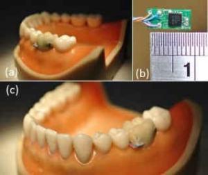 Sensor aplicado num dente