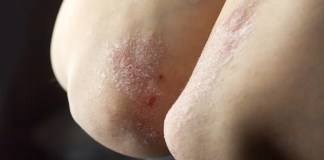 Expanded indication for UCB's plaque psoriasis treatment in US