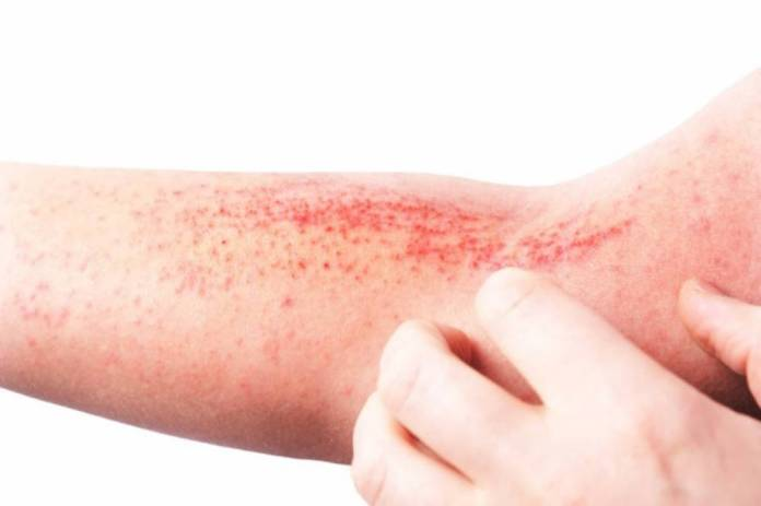 Evotec and LEO partner on dermatological conditions