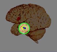 brain (teen)