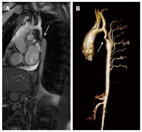 Coarctation of the aorta: Management from infancy to adulthood