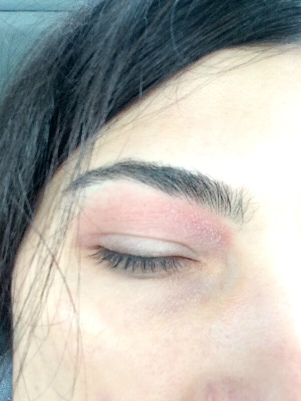 eyeliddermatitis