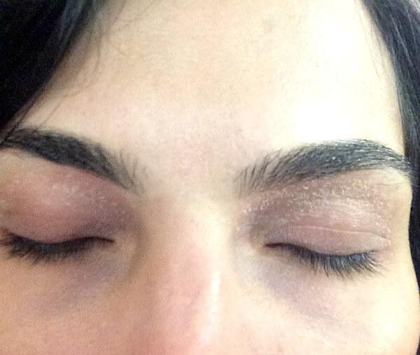 eyeliddermatitis2