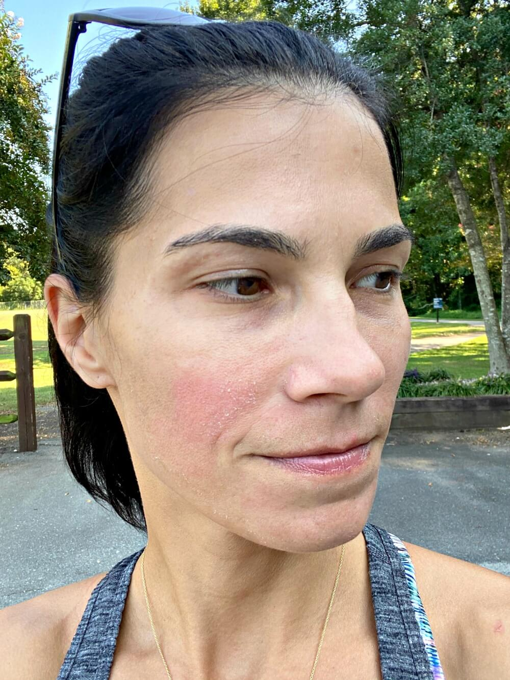 four days post-vampire facial