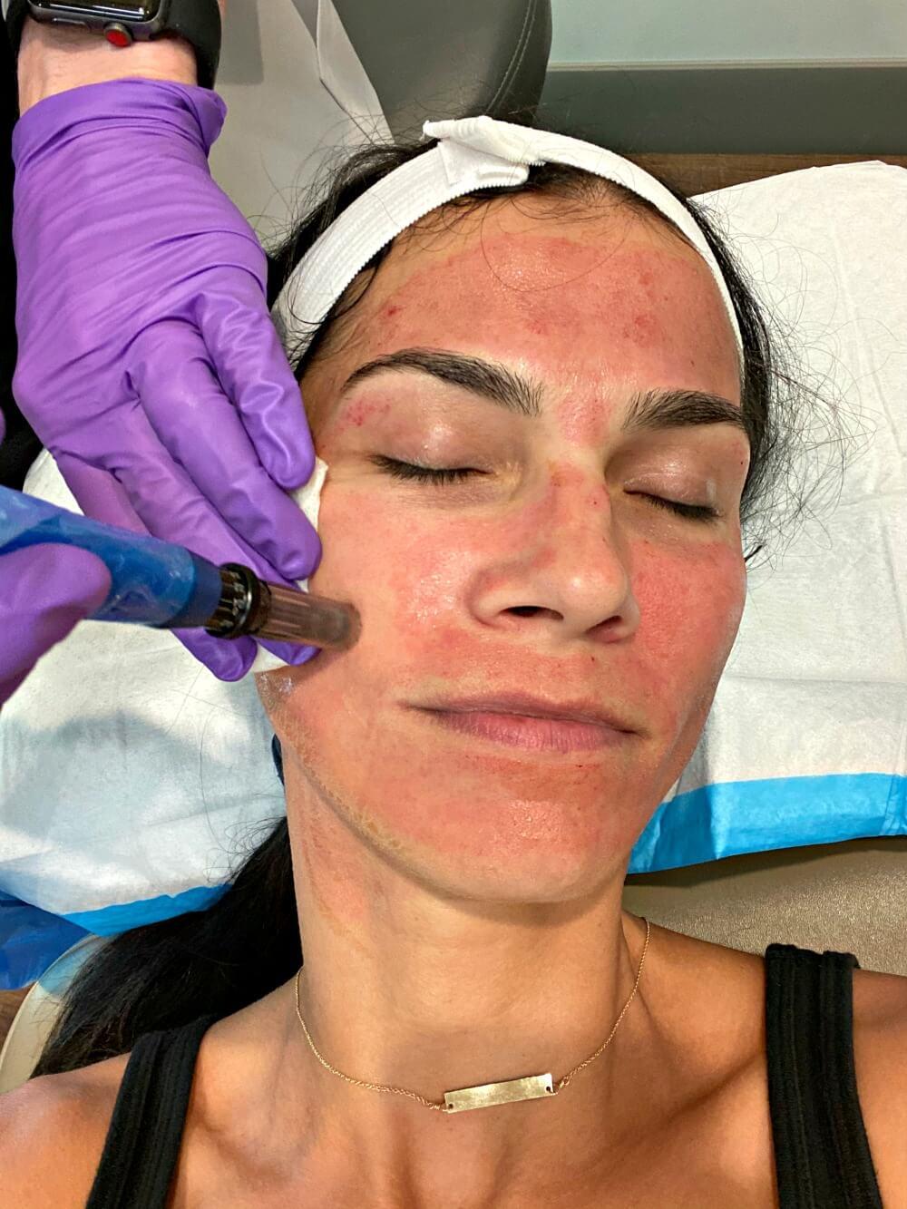 vampire facial Carolina facial plastics