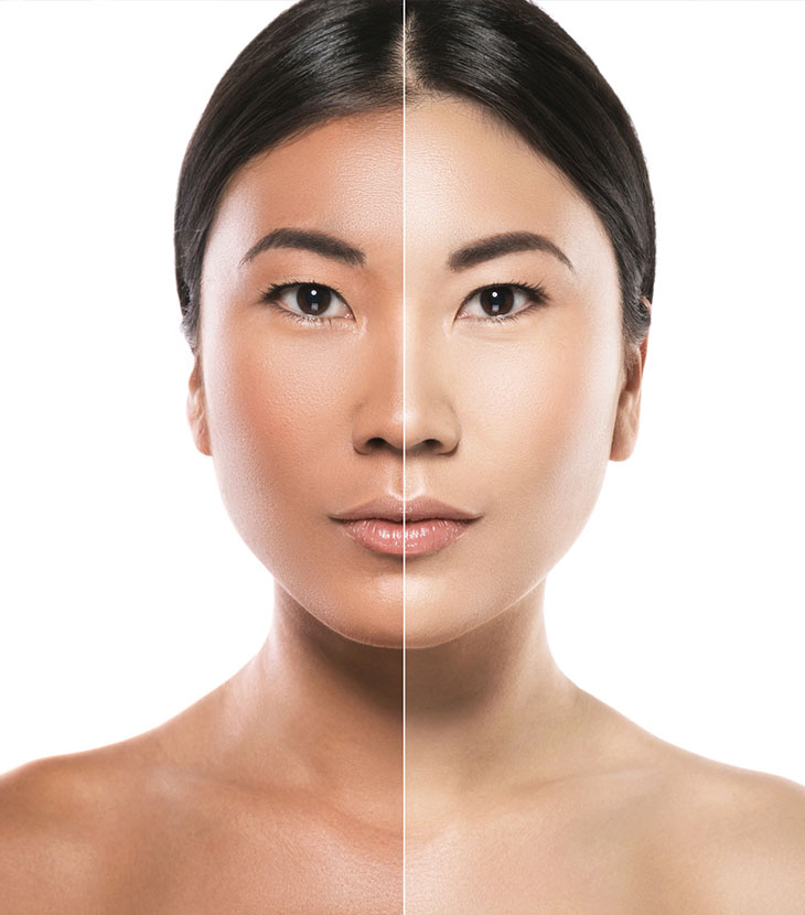 Skin Whitening Obsession in the Philippines