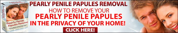 Papules removal pearly Pearly Penile